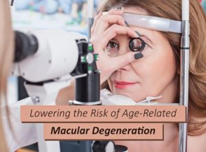 Lowering the Risk of Age-Related Macular Degeneration